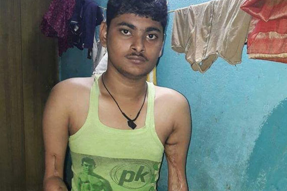 Disabled poor Deepak lost his hands in electrical accident in India and needs help to live